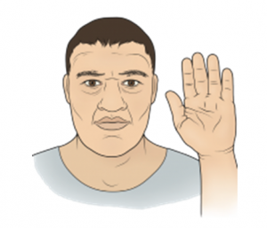 Akromegali (Devlik) Hastalığı