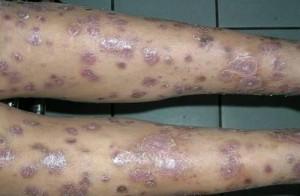 frengi-hastalığı