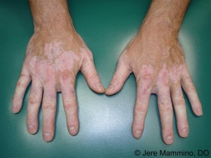 vitiligo_2_high